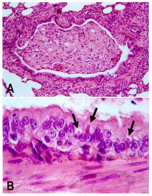 Staupe Virus vom Hund unter dem Mikroskop